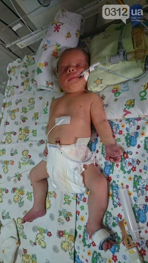 Як лікар ужгородського пологового будинку дав змогу немовляті дихати: фото, фото-3