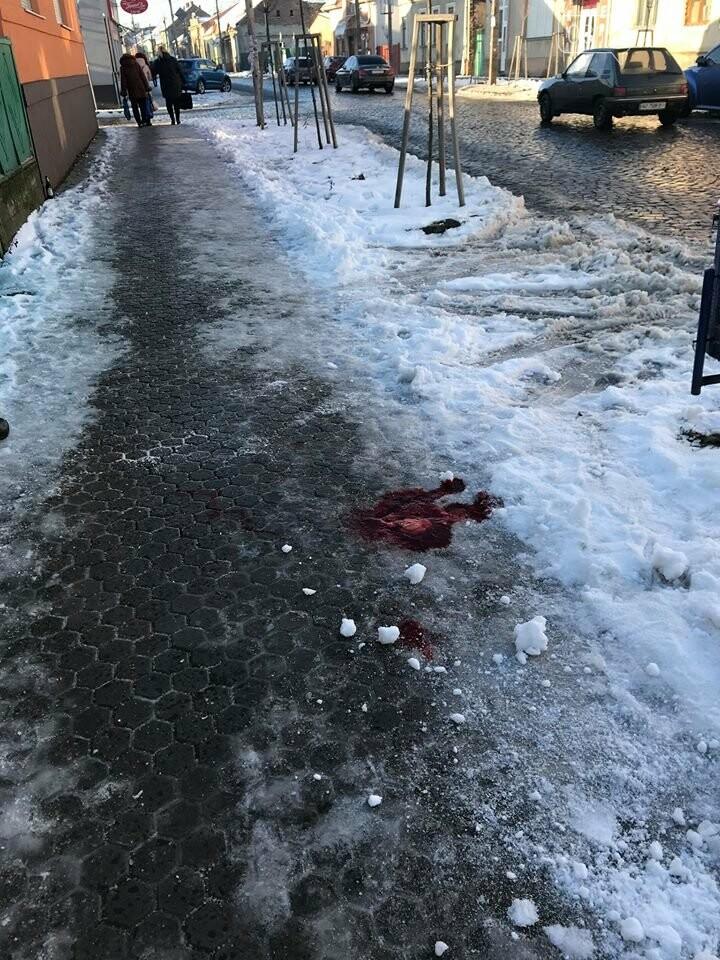 У Мукачеві на замерзлій вулиці Духновича чоловік розбив голову і мало не стік кров'ю: фото, фото-1