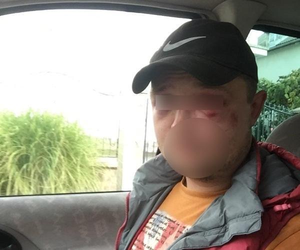 На Міжгірщині селяни побили туристів, які прийшли за грибами: один - у реанімації (ФОТО), фото-1