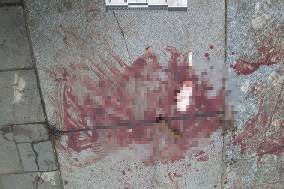 Нічна стрілянина на Льва Толстого: поранено 27-річного чоловіка, винуватців розшукують (ФОТО), фото-1