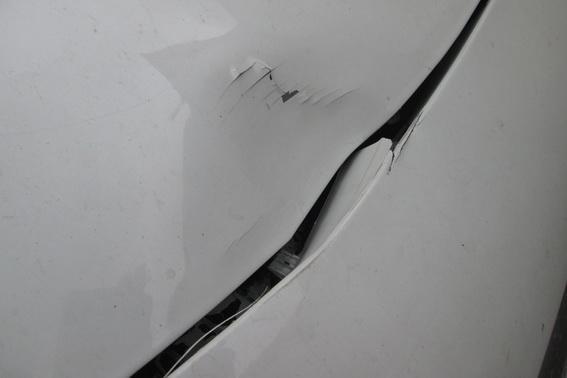 """На Тячівщині водій на """"Опелі"""" збив 22-річну дівчину: постраждала з важкими травмами в лікарні (ФОТО), фото-2"""
