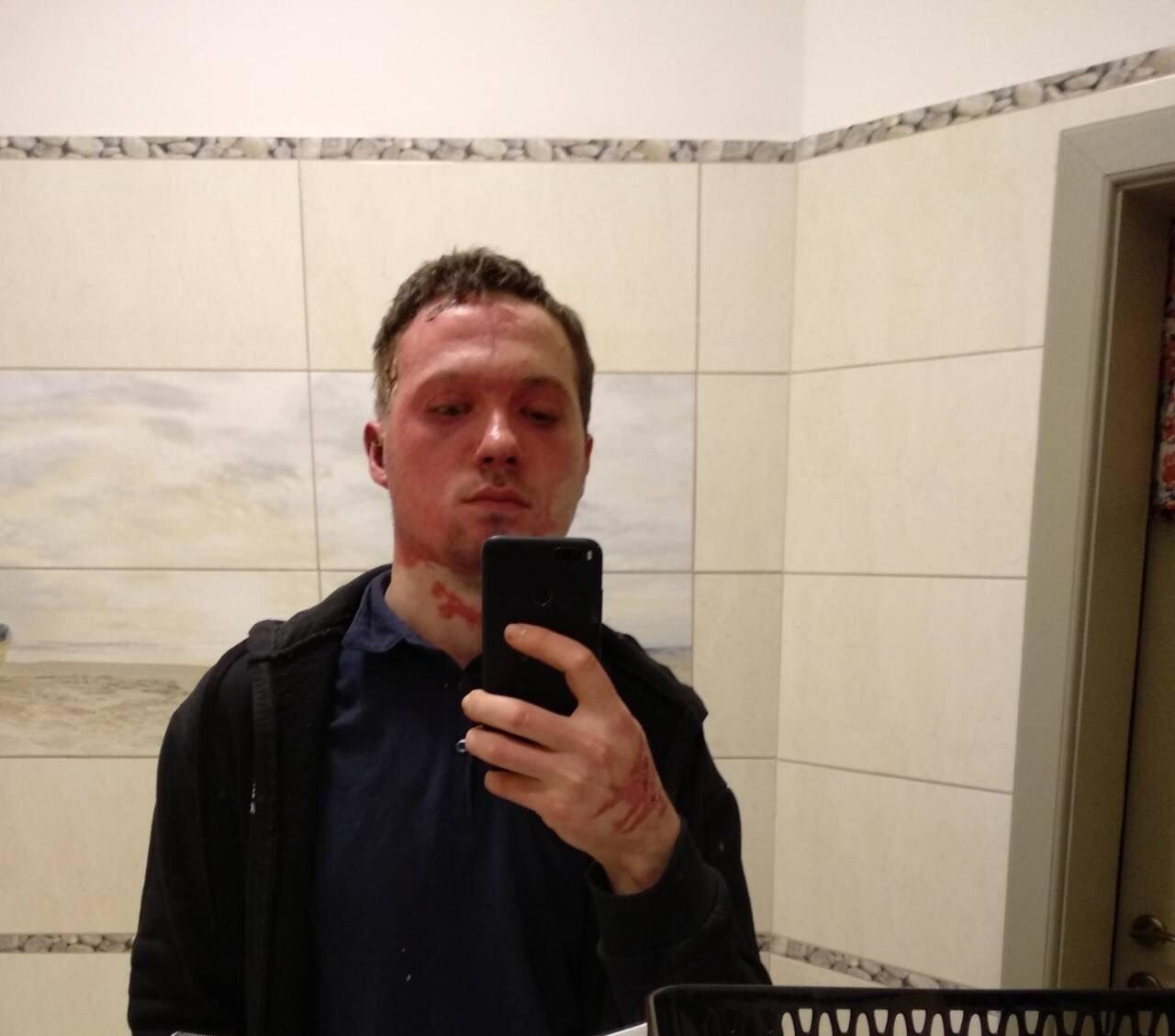 """""""Підозрюваний у цій справі вже є"""": Михайло Грабар, якого облили кислотою, повернувся з Одеси в Ужгород (ІНТЕРВ'Ю), фото-4"""