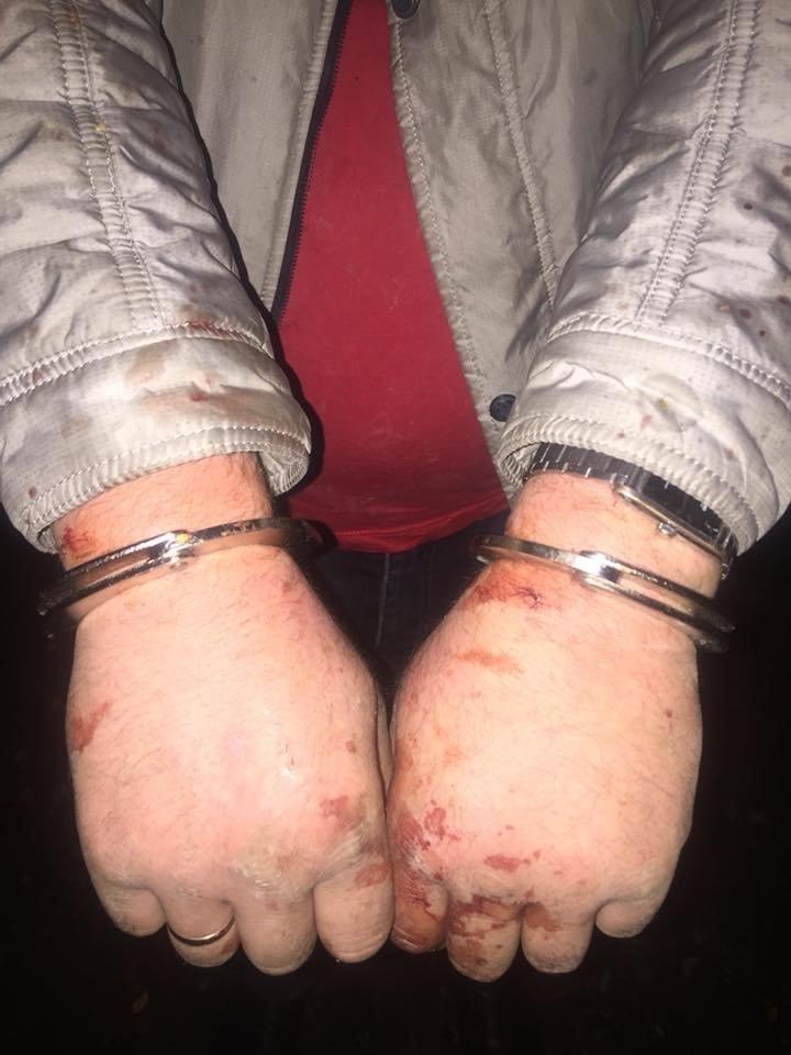 Двоє невідомих напали на закарпатця, закували його в наручники і побили (ФОТО), фото-1