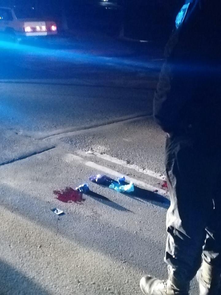 ДТП в Ужгороді: на Грушевського авто збило пішохода (ФОТО), фото-6