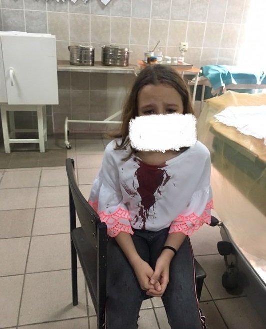 Побили школярку? Закарпатський активіст у соцмережі розповів про дитячу жорстокість (ФОТО), фото-1