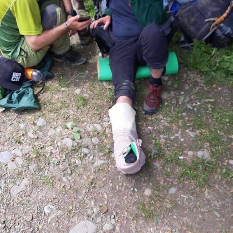 На Закарпатті рятувальники транспортували з гори травмованого туриста (ФОТО), фото-1