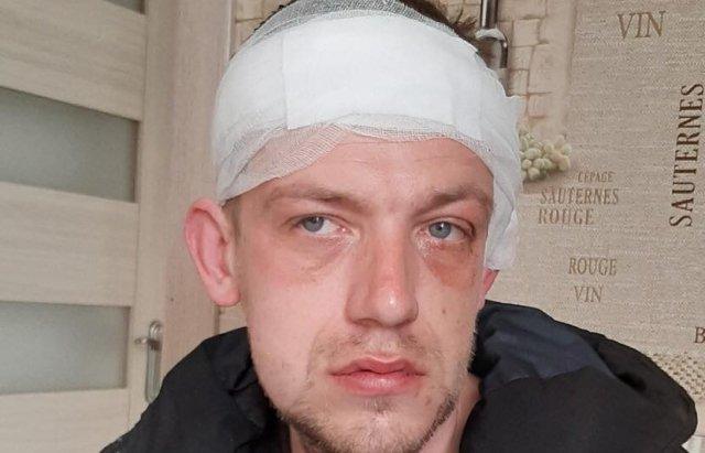 Переломом щелепи, забій голови: на Закарпатті сильно побили учасника АТО (ФОТО), фото-2