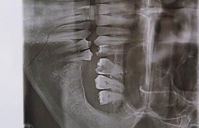 Переломом щелепи, забій голови: на Закарпатті сильно побили учасника АТО (ФОТО), фото-1
