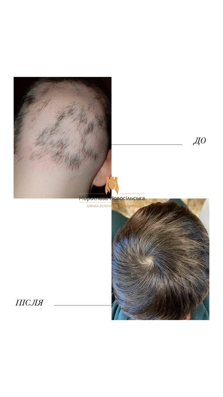 Випадає волосся у дитини - що робити? До якого лікаря йти?, фото-2