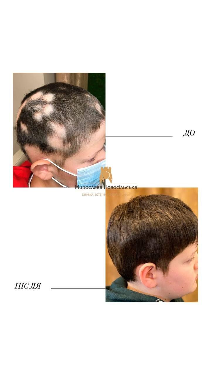 Випадає волосся у дитини - що робити? До якого лікаря йти?, фото-1